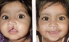 Benefits of Cleft-lip Surgery India
