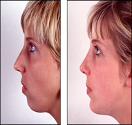 Chin Augmentation in India after