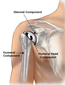 Shoulder Replacement Surgery India