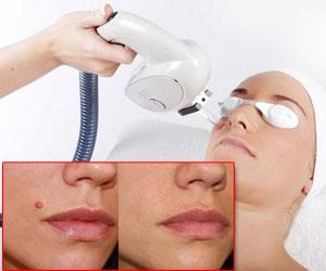 Laser Birthmark Removal Treatment India Cost Laser Birthmark Removal Treatment Laser Birthmark Removal Treatment