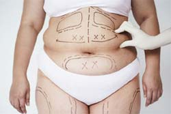 Flat Your Tummy With Advanced Liposuction Surgery Procedure In India