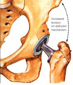 Hip Replacement and Resurfacing Surgery in India
