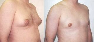 Breast Reduction Surgery India Low Cost Breast Reduction Surgery India Breast Reduction Surgery Benefits India