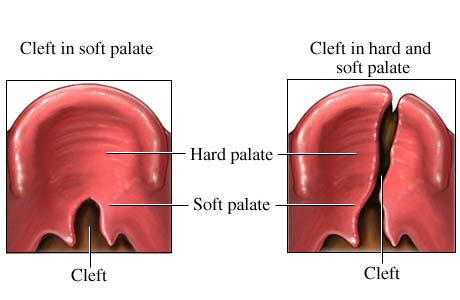 Cleft Palate Surgery India,Cost Cleft Palate Surgery,Cleft Palate